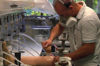 Chabloz Orthopédie imprime en 3D son appareillage orthopédique