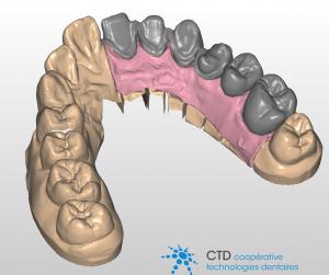 La conception des prothèses dentaires se fait de manière totalement numérique