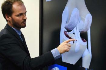 FollowKnee, une prothèse de genou connectée imprimée en 3D