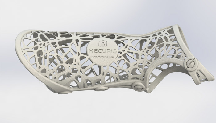 orthèses imprimées en 3D