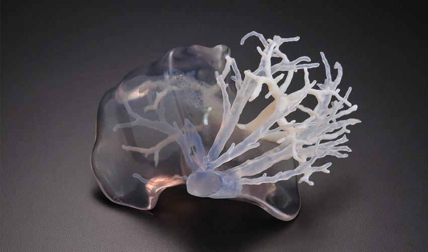 fabrication additive médicale