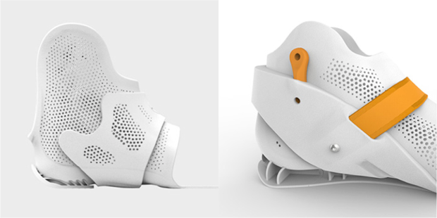 orthèse imprimée en 3D