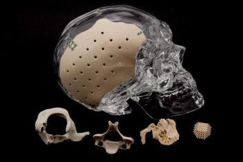 Des implants imprimés en 3D à partir de PEKK pour accélérer la régénération osseuse