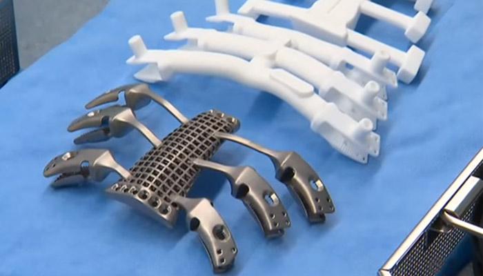 implant imprimé en 3D