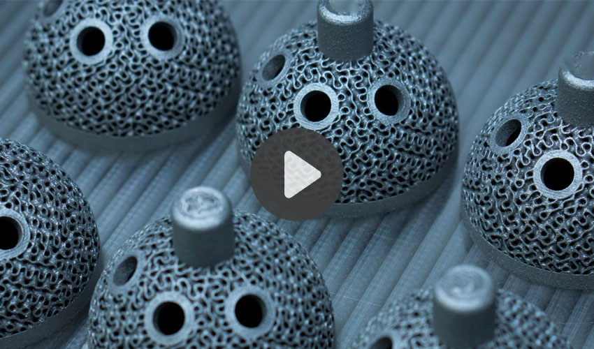 implants orthopédiques imprimés en 3D